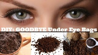 DIY Get Rid of Under Eye Bags At Home in Minutes