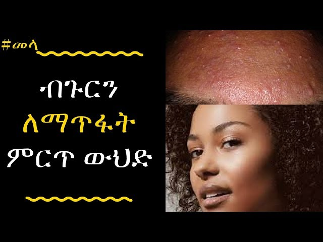 ETHIOPIA - How To Get Rid Of Pimples (Acne)