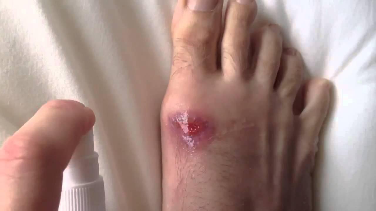 Чем заживлять раны в домашних условиях
