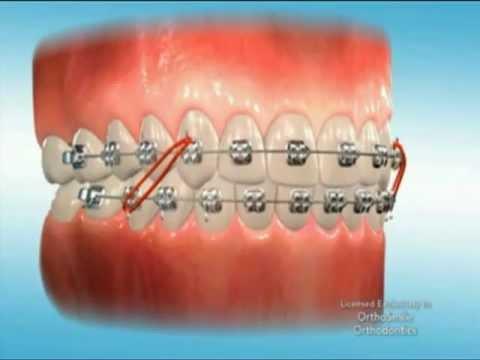 orthosmile braces youtube