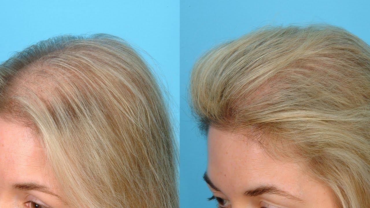 Мезолакс для волос отзывы