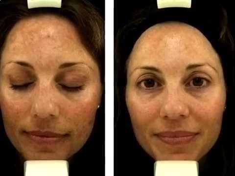 picture How to remove acne scars with bio oil