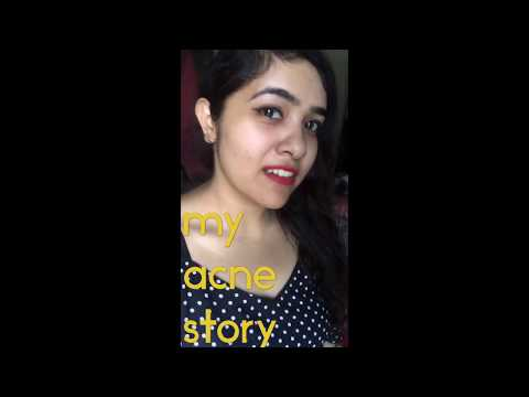 My Acne Story| How to get rid of pimples | Clinique Anti Blemish range| Acne Marks| Home remedies