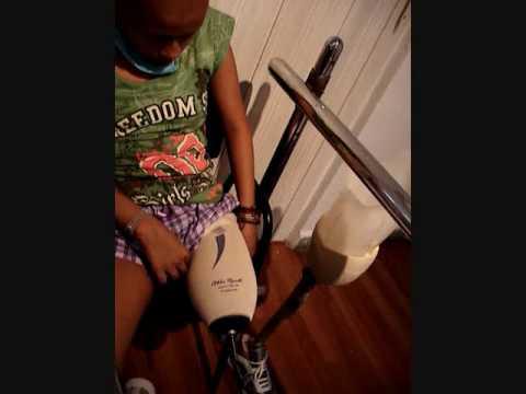 Protesis de entrenamiento (Colocando Silicon Liner y Socket de Prueba)