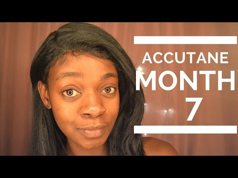 Accutane Update| The Journey Continues | MONTH 7