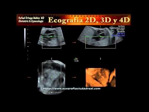 Embarazo 23  semanas valvulas cardiacas 3D y 4D  Clinica Ginecologica Dr. Rafael Ortega Muñoz