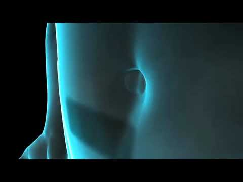 Colecistectomia - Retirada da Vesícula Biliar