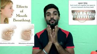 Nose Breathing VS Mouth Breathing (A.K.A )full Detail In Hindi