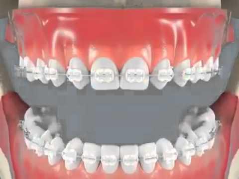 การดัดฟัน ฟันมันจะเคลื่อนตัวยังงัย