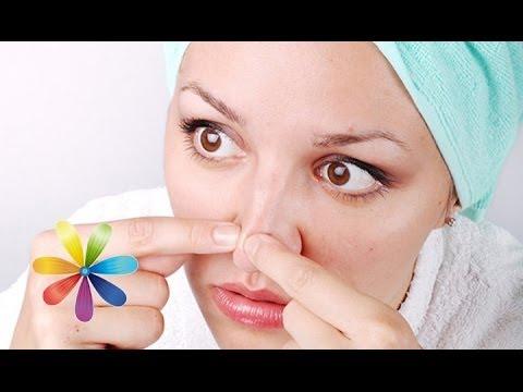 Очищаем нос и подбородок от черных точек - Все буде добре - Выпуск 131 - 13.02.2013