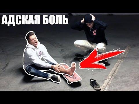 ДИКИЕ ТРЮКИ после ПЕРЕЛОМА на СКЕЙТЕ
