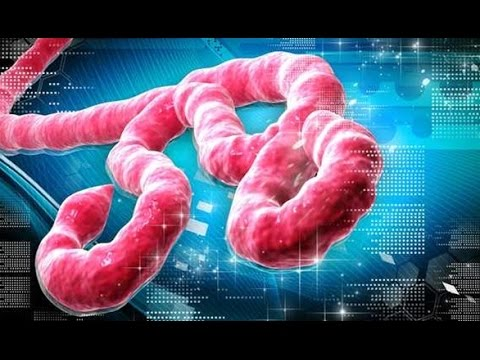 Pestilence : CDC warns Ebola Outbreak in Africa Is worse than Originally Feared (Aug 27, 2014)