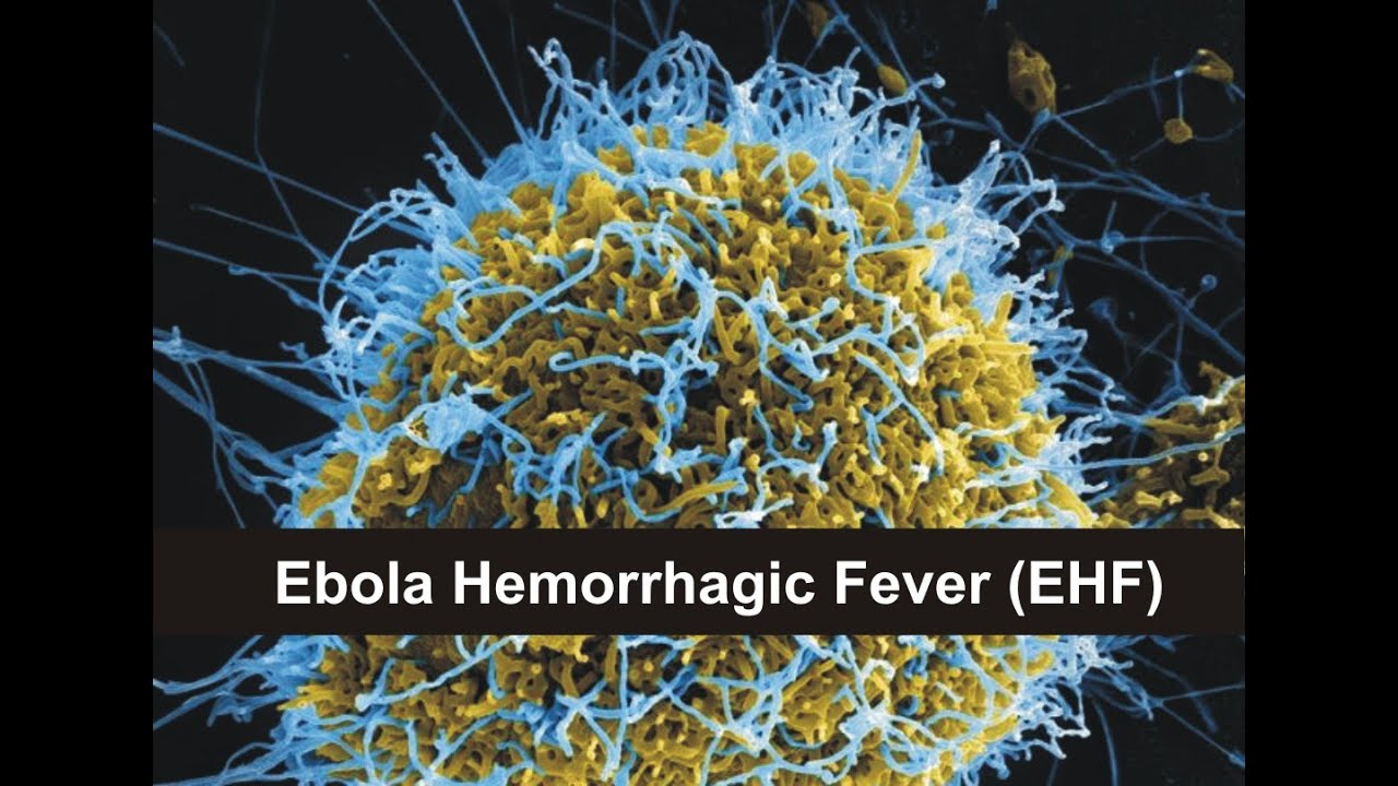 the mystery of the ebola hemorrhagic fever Medical article marburg hemorrhagic fever dvrd including  marburg and ebola hemorrhagic  the actual animal host for marburg virus also remains a mystery.