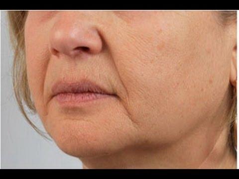 Как убрать носогубные складки - коррекция носогубных складок и мимических морщин