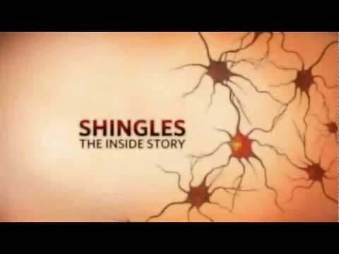 Shingles, The Inside Story