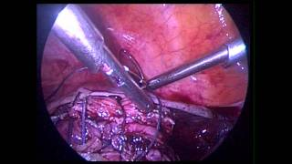 laparoscopic myomectomy 9 cm fibroid GENESYS FERTILITY CENTER
