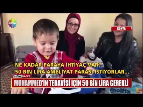 Muhammed'in tedavisi için 50 Bin Lira gerekli
