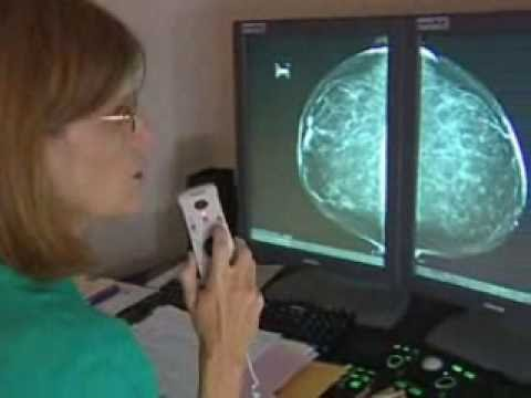 who invented the mammography machine