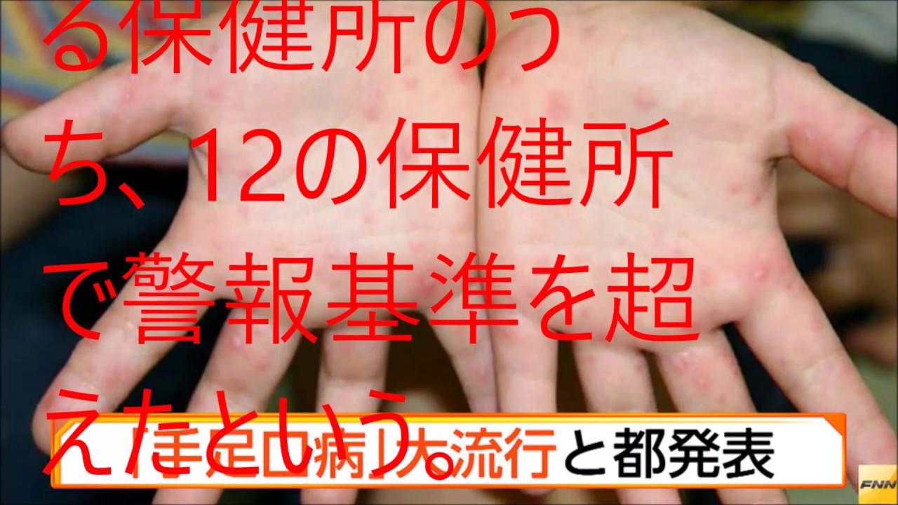 手足口病 初期症状 赤ちゃん
