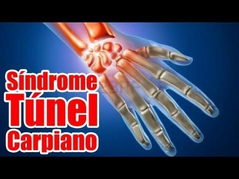 Consejos para evitar el Síndrome del Túnel Carpiano en bateristas