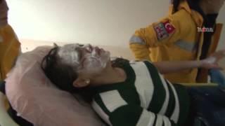 Mersin'de bir kişi birlikte yaşadığı kadını kezzapla yaktı \ 10 12 2014 \ MERSİN