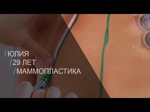 Из Сочи за грудью в Столицу. Трейлер к истории пациента