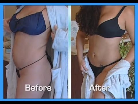 Abdomen and Waist- Smartlipo-Tumescent Liposuction