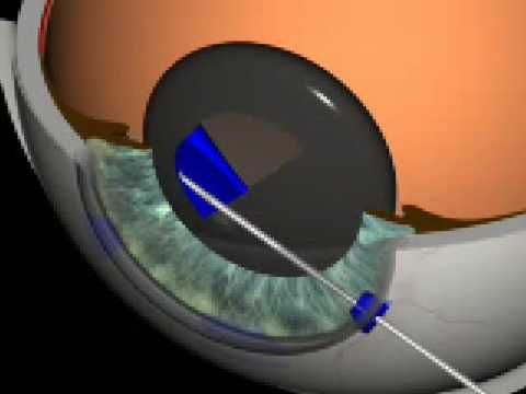 Cataract Surgery 3D Animation O. Findl, MD, Vienna