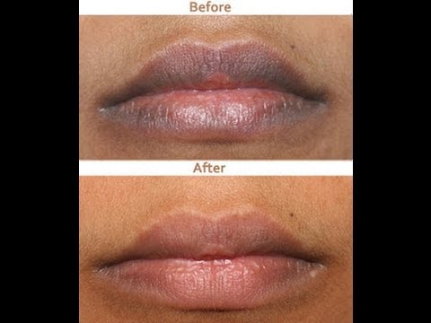 What Causes Black Spots on Lips? | MD-Health.com