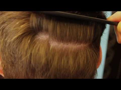 Mark Kendrick 2775 grafts hair transplant in 2012