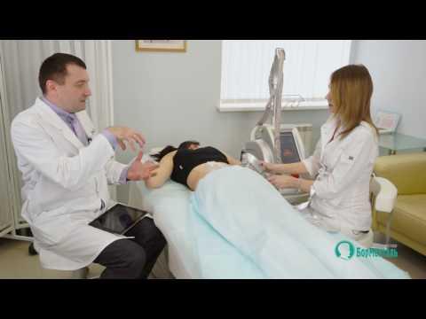 Криолиполиз - новая технология борьбы с жировыми ловушками