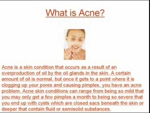 Will an Acne Skin Treatment Really Work?
