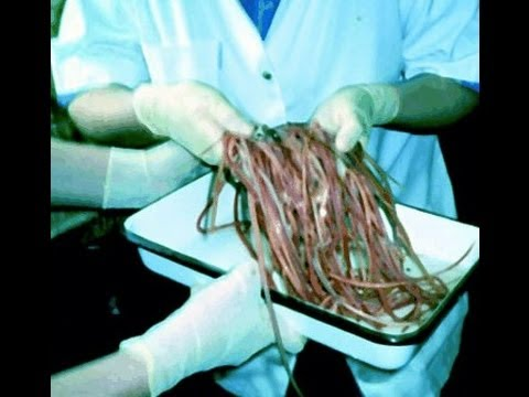 Removing intestinal worms & parasites from a bodybuilders colon.