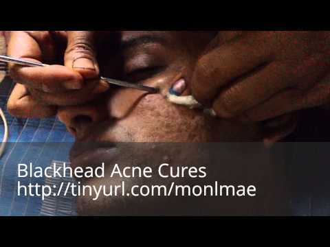 Blackhead Acne Cures