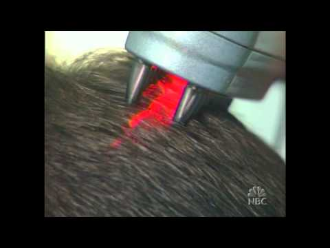 HairMax LaserComb tested on Dateline NBC - The Follicle 5 - Part 5