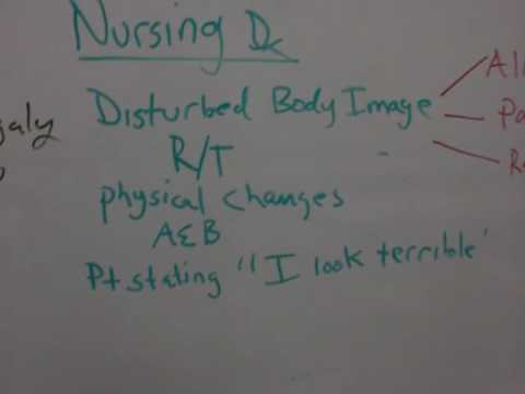 Hyperpituitaryism 3  Nursing Care
