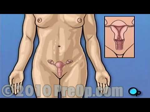 PreOp® Patient Education Myomectomy Vaginal Fibroid Removal
