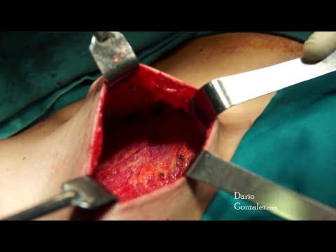 Mastectomía subcutánea  / Dr. Darío González