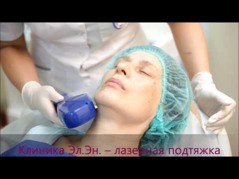 Термолифтинг (лазерная подтяжка кожи)