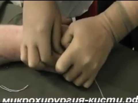 Видео как снять обручальное кольцо