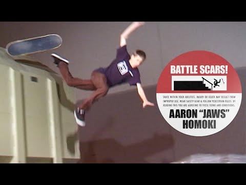 """Aaron """"Jaws"""" Homoki's Battle Scars"""