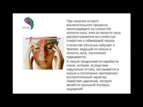 0 - Як лікувати синусит в домашніх умовах швидко у дорослого