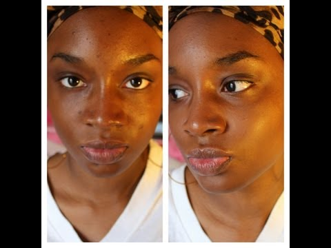 How To: Get Rid of Acne/Dark Spots and Scars