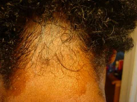 Hair Growth Using Castor Oil 90 Day Challenge Youtube