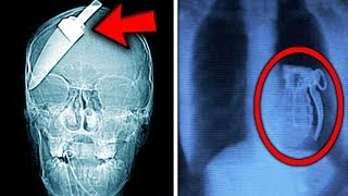 Top 10 Most Shocking THINGS FOUND IN X-RAYS!