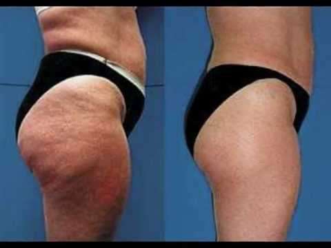 Exercises Eliminate cellulite | How to eliminate cellulite | Cellulite treatment | Before and After