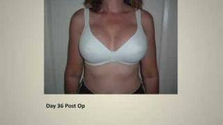 All comments on Stages of Healing After Breast ...