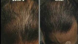 Dateline NBC #3 - Hair Transplant and Other Treatments: 6-month Results
