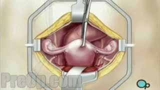 PreOp® Hysterectomy Removal of Uterus, Ovaries and Fallopian Tubes Surgery