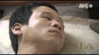 VTC14_Nỗi khổ của người 18 năm nằm liệt giường vì tai nạn lao động